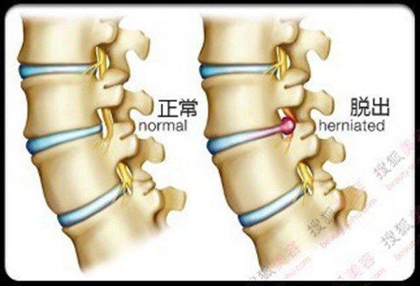 2016年7月8日讯,你想象中的腰椎间盘手术是不是要在腰部切一个长长