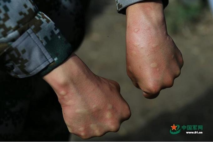 一掌拍死50多只蚊子 肆虐蚊虫丝毫没影响官兵巡边意志