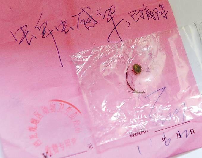 女童瘫痪缘由成谜 直到妈妈在她的马尾辫里发明了一只小虫子