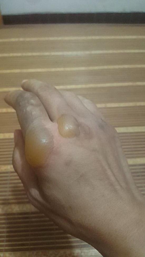 徒手端走起火油锅 羊汤店老板娘:一锅热油落到手上脚上得有多疼(原创)